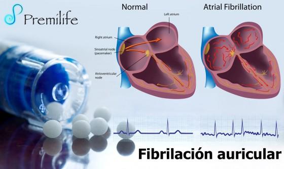 atrial-fibrillation-spanish