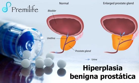 benign-prostatic-hypertrophy-spanish