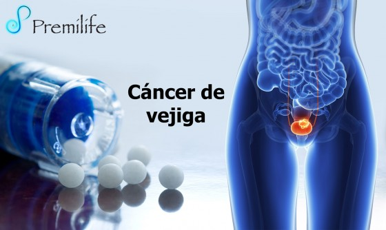 bladder-cancer-spanish