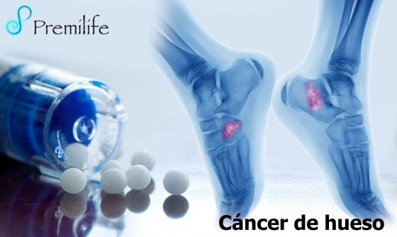 bone-cancer-spanish