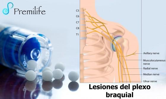 brachial-plexus-injuries-spanish