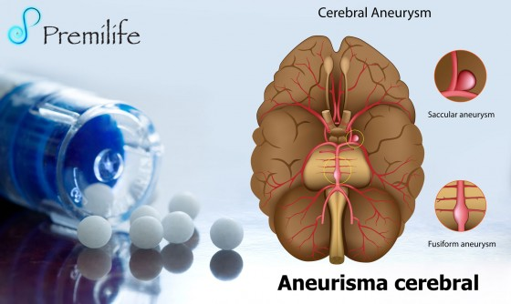 brain-aneurysm-spanish