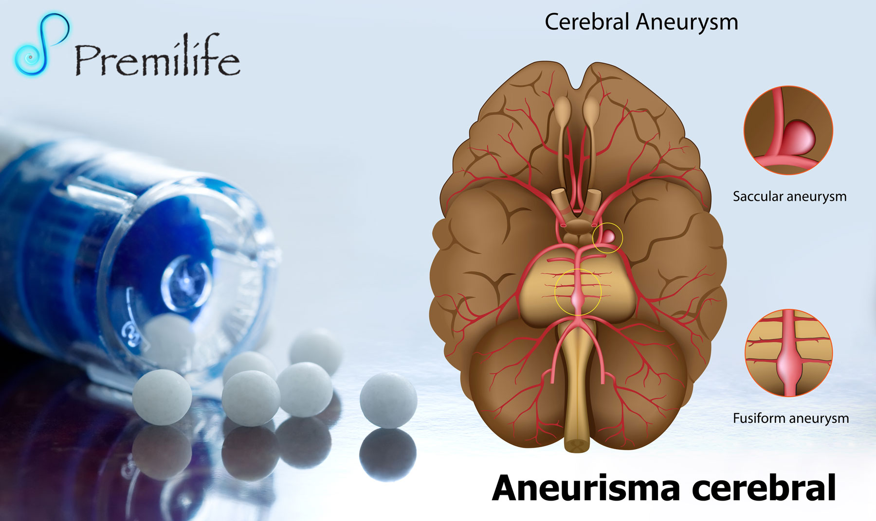 causes and symptoms of brain aneurysm Intracranial aneurysm, also known as brain aneurysm, is a cerebrovascular disorder in which weakness in the wall of a cerebral artery or vein causes a localized.