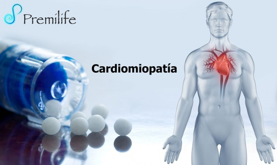 cardiomyopathy-spanish