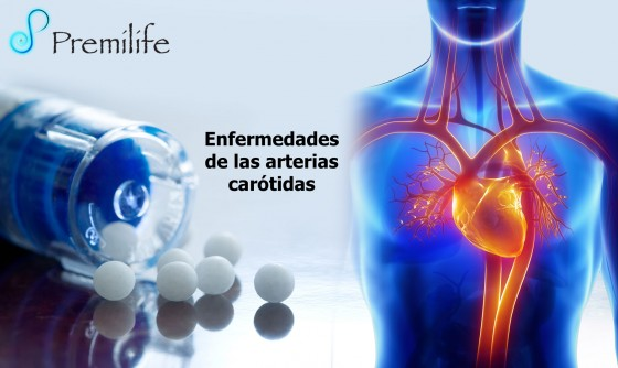 carotid-artery-disease-spanish