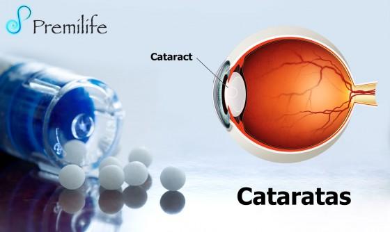 cataract-spanish