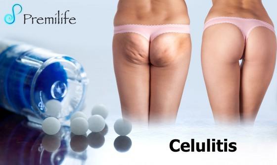cellulite-spanish