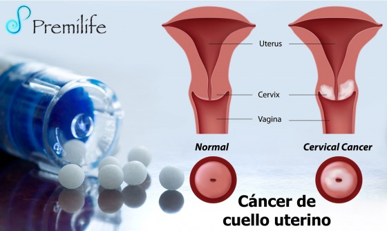 cervical-cancer-spanish