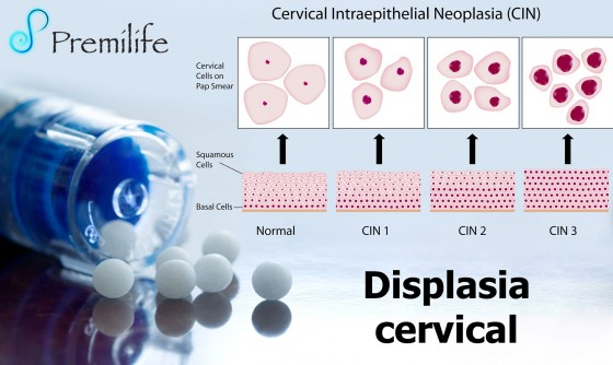 cervical-dysplasia-spanish