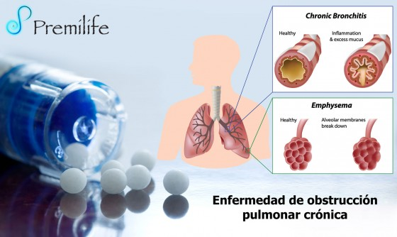 chronic obstructive-pulmonary-disease-spanish