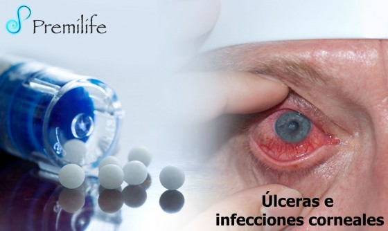 corneal-ulcers-and-infections-spanish