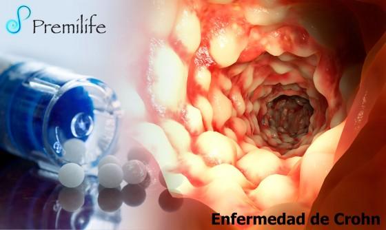 crohn's-disease-spanish