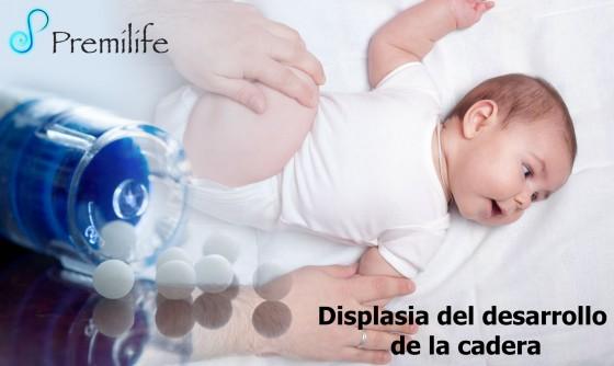 developmental-dysplasia-of-the-hip-spanish