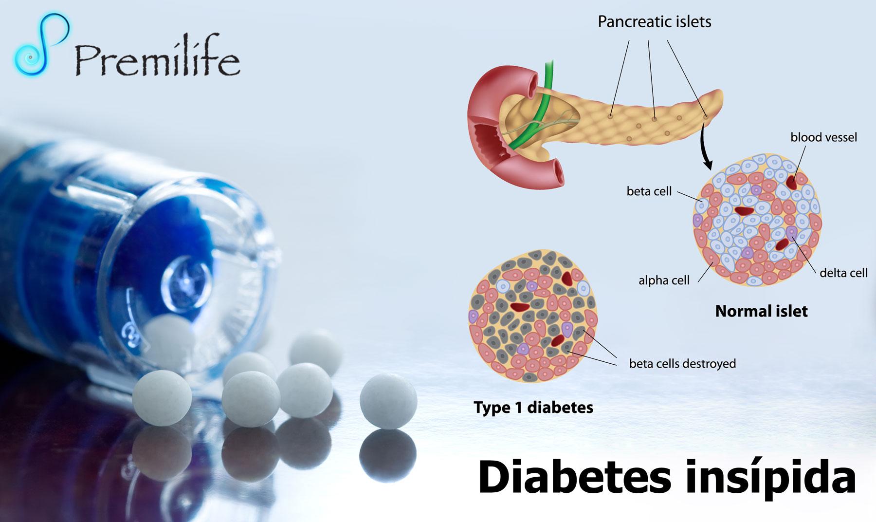 diabetes insípida en los estados unidos