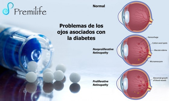 diabetic-eye-problems-spanish