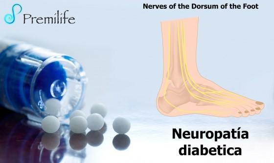 diabetic-neuropathy-spanish