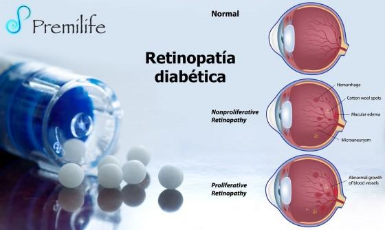 diabetic-retinopathy-spanish