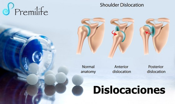 dislocations-spanish
