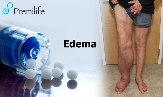 edema-spanish