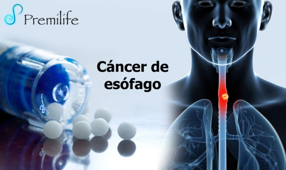 esophageal-cancer-spanish