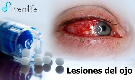eye-injuries-spanish