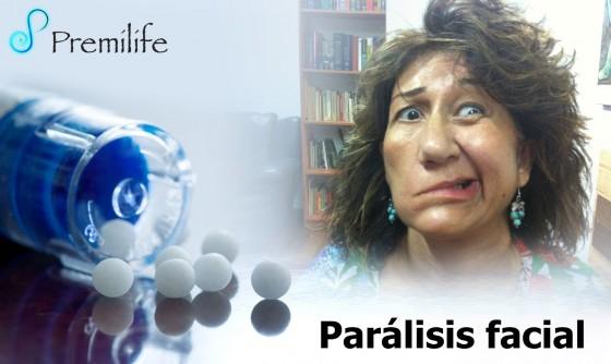 facial-paralysis-spanish