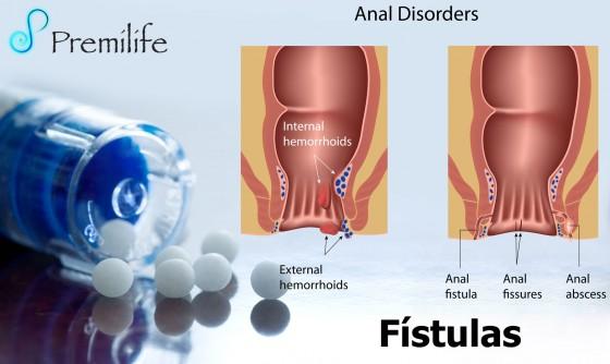 fistulas-spanish
