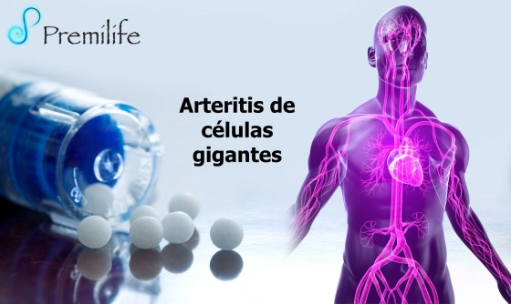 giant-cell-arteritis-spanish
