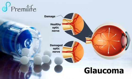 glaucoma-spanish