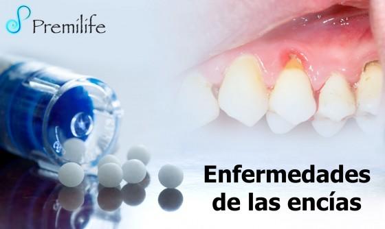gum-disease-spanish