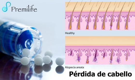 hair-loss-spanish