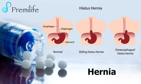hernia-spanish
