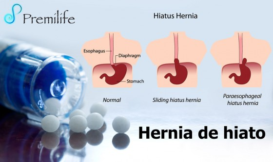 hiatal-hernia-spanish
