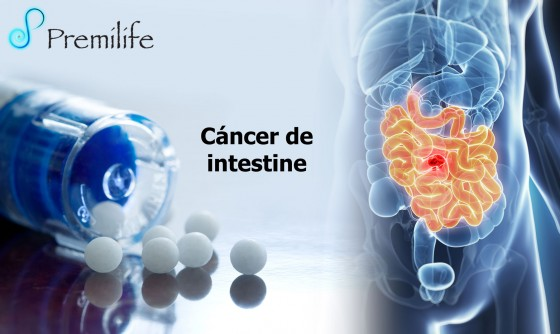 intestinal-cancer-spanish