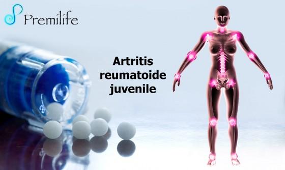 juvenile-rheumatoid-arthritis-spanish
