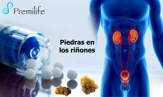 kidney-stones-spanish