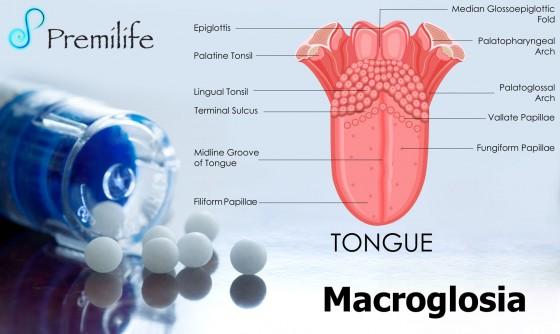 macroglossia-spanish