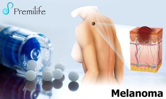 melanoma-spanish