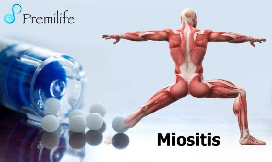 myositis-spanish