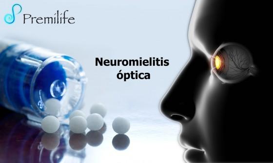 neuromyelitis-optica-spanish
