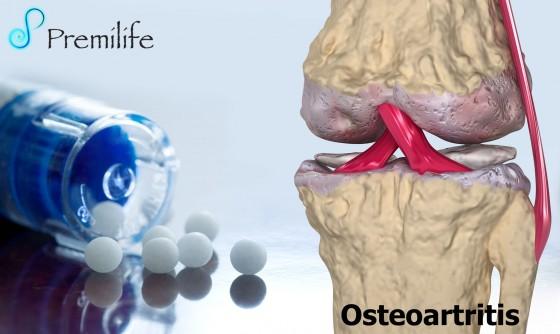 osteoarthritis-spanish