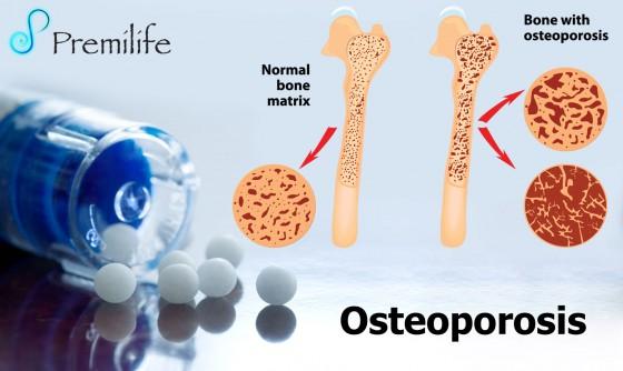 osteoporosis-spanish