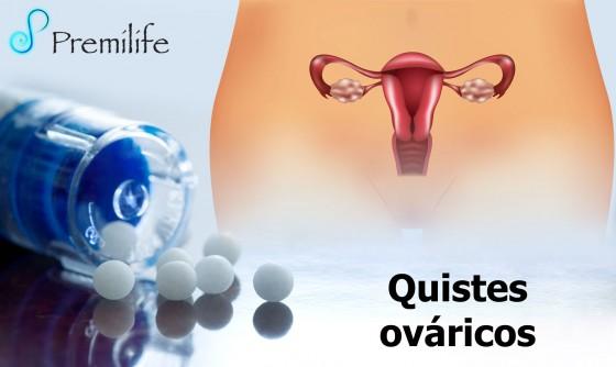 ovarian-cysts-spanish
