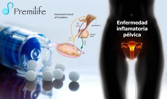 pelvic-inflammatory-disease-spanish