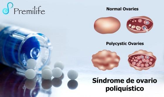 polycystic-ovary-syndrome-spanish