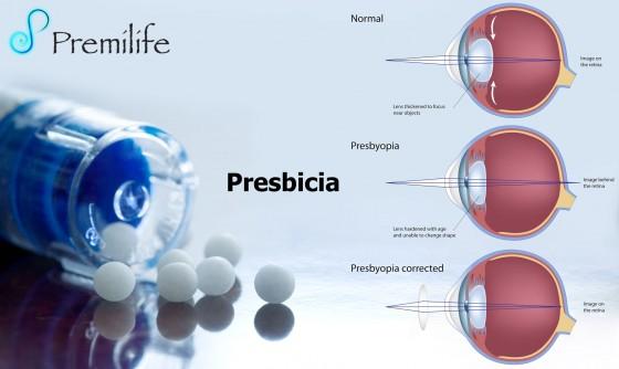 presbyopia-spanish