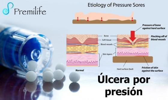 pressure-sores-spanish