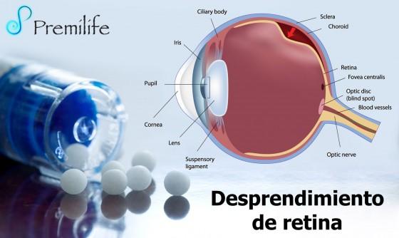 retinal-detachment-spanish