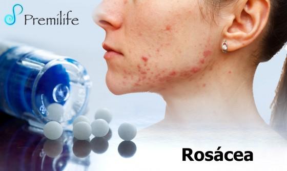 rosacea-spanish