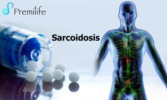 sarcoidosis-spanish